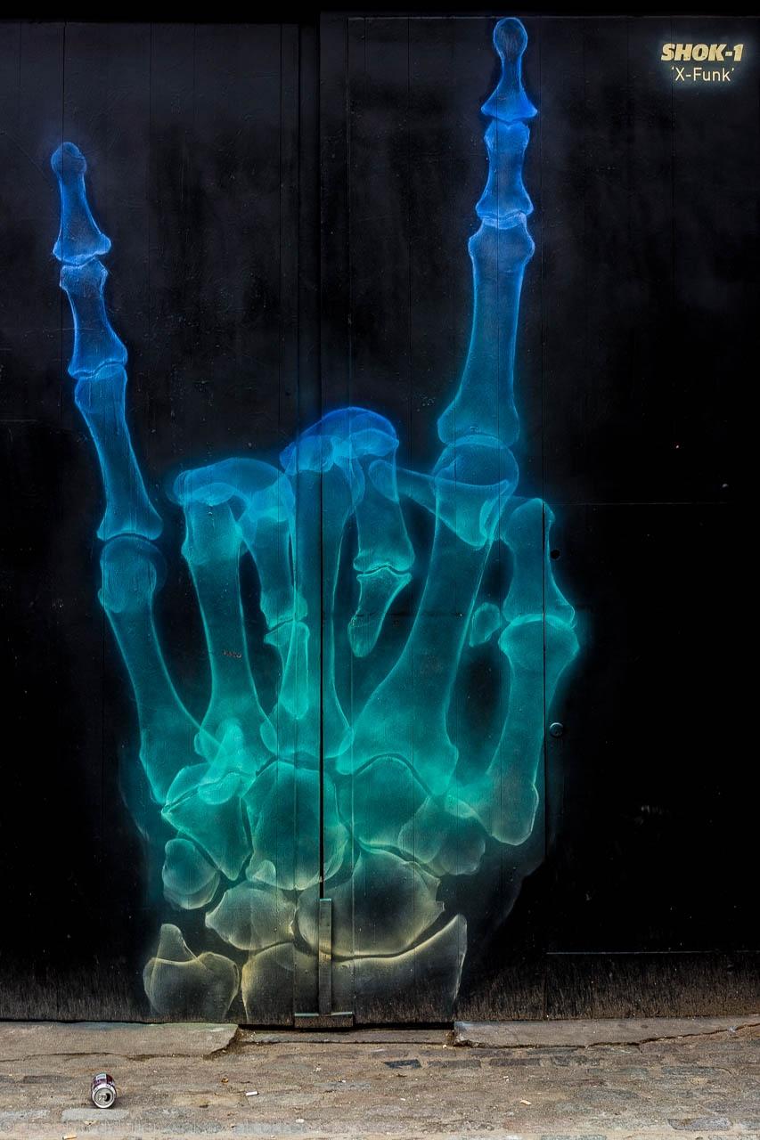 Mano Cornuta Röntgen